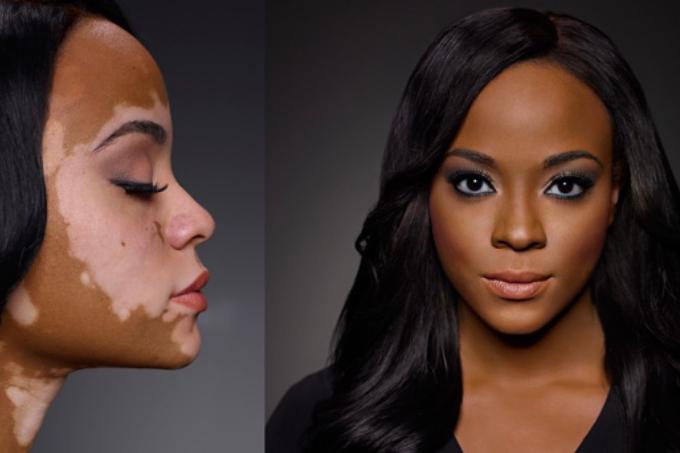 maq-vitiligo